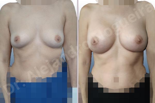 Asymmetric breasts,Empty breasts,Slightly saggy droopy breasts,Small breasts,Wide breasts,Anatomical shape,Lower hemi periareolar incision,Subfascial pocket plane - photo 1