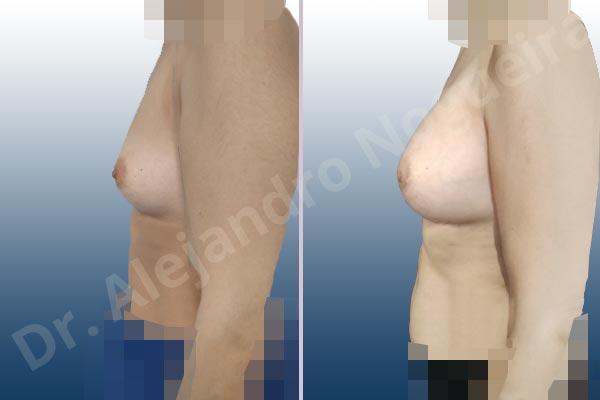 Asymmetric breasts,Empty breasts,Slightly saggy droopy breasts,Small breasts,Wide breasts,Anatomical shape,Lower hemi periareolar incision,Subfascial pocket plane - photo 2