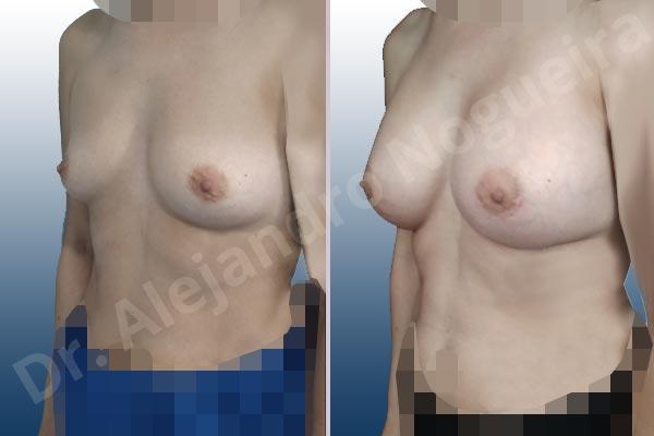 Asymmetric breasts,Empty breasts,Slightly saggy droopy breasts,Small breasts,Wide breasts,Anatomical shape,Lower hemi periareolar incision,Subfascial pocket plane - photo 3