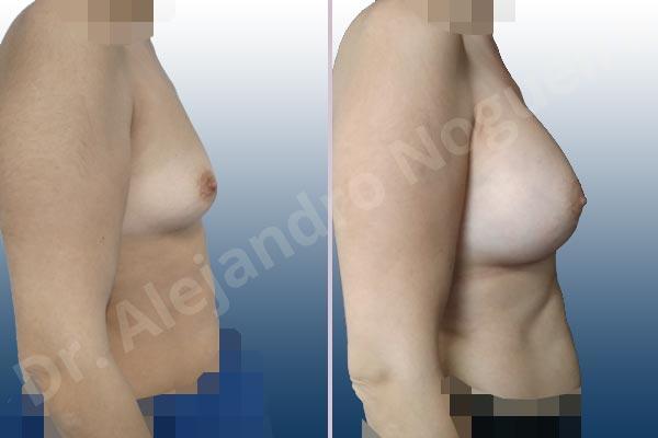 Asymmetric breasts,Empty breasts,Slightly saggy droopy breasts,Small breasts,Wide breasts,Anatomical shape,Lower hemi periareolar incision,Subfascial pocket plane - photo 4