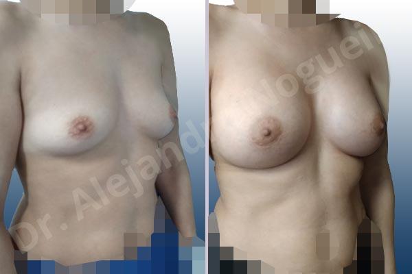 Asymmetric breasts,Empty breasts,Slightly saggy droopy breasts,Small breasts,Wide breasts,Anatomical shape,Lower hemi periareolar incision,Subfascial pocket plane - photo 5