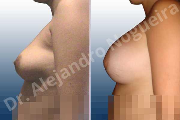 Asymmetric breasts,Empty breasts,Mildly saggy droopy breasts,Slightly saggy droopy breasts,Anatomical shape,Lower hemi periareolar incision,Subfascial pocket plane - photo 2
