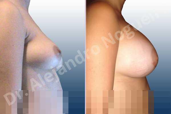 Asymmetric breasts,Empty breasts,Mildly saggy droopy breasts,Slightly saggy droopy breasts,Anatomical shape,Lower hemi periareolar incision,Subfascial pocket plane - photo 4