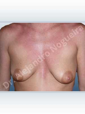 Asymmetric breasts,Empty breasts,Mildly saggy droopy breasts,Moderately saggy droopy breasts,Small breasts,Anatomical shape,Lollipop incision,Subfascial pocket plane,Superior pedicle