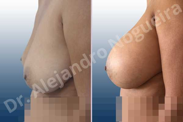 Asymmetric breasts,Empty breasts,Moderately large breasts,Pendulous breasts,Severely saggy droopy breasts,Wide breasts,Anatomical shape,Extra large size,Lower hemi periareolar incision,Subfascial pocket plane - photo 2