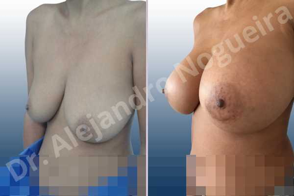 Asymmetric breasts,Empty breasts,Moderately large breasts,Pendulous breasts,Severely saggy droopy breasts,Wide breasts,Anatomical shape,Extra large size,Lower hemi periareolar incision,Subfascial pocket plane - photo 3