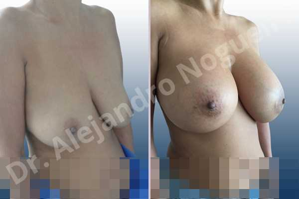 Asymmetric breasts,Empty breasts,Moderately large breasts,Pendulous breasts,Severely saggy droopy breasts,Wide breasts,Anatomical shape,Extra large size,Lower hemi periareolar incision,Subfascial pocket plane - photo 5
