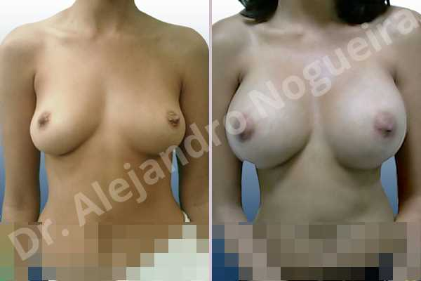 Asymmetric breasts,Cross eyed breasts,Empty breasts,Lateral breasts,Slightly saggy droopy breasts,Small breasts,Too far apart wide cleavage breasts,Anatomical shape,Extra large size,Inframammary incision,Subfascial pocket plane - photo 1