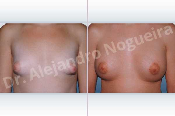 Asymmetric breasts,Cross eyed breasts,Large areolas,Lateral breasts,Narrow breasts,Small breasts,Too far apart wide cleavage breasts,Tuberous breasts,Anatomical shape,Areola reduction,Circumareolar incision,Subfascial pocket plane,Tuberous mammoplasty - photo 1