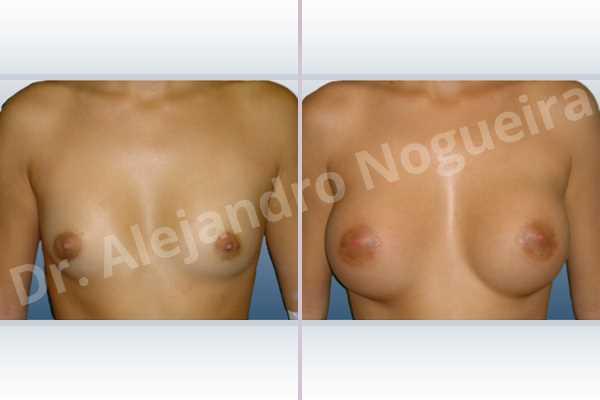 Asymmetric breasts,Cross eyed breasts,Lateral breasts,Narrow breasts,Skinny breasts,Small breasts,Lower hemi periareolar incision,Round shape,Subfascial pocket plane - photo 1