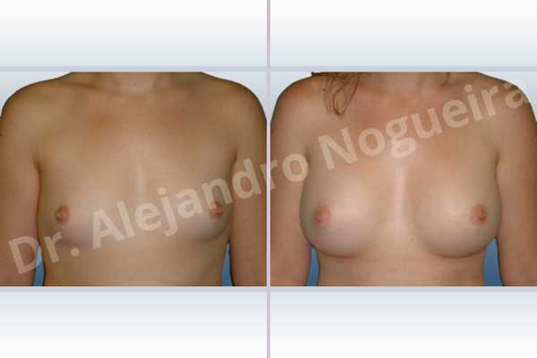 Lateral breasts,Narrow breasts,Small breasts,Too far apart wide cleavage breasts,Anatomical shape,Inframammary incision,Subfascial pocket plane - photo 1