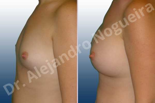 Lateral breasts,Narrow breasts,Small breasts,Too far apart wide cleavage breasts,Anatomical shape,Inframammary incision,Subfascial pocket plane - photo 2
