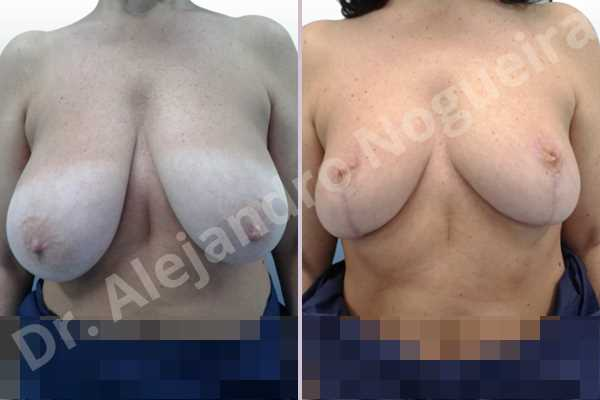 Asymmetric breasts,Breast tissue bottoming out,Extremely saggy droopy breasts,Large areolas,Lateral breasts,Pendulous breasts,Pigeon chest,Severely large breasts,Wide breasts,Tuberous breasts,Anchor incision,Areola reduction,Double vertical pedicle - photo 1