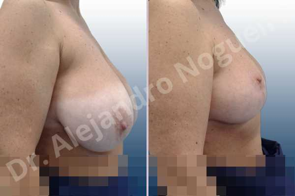 Asymmetric breasts,Breast tissue bottoming out,Extremely saggy droopy breasts,Large areolas,Lateral breasts,Pendulous breasts,Pigeon chest,Severely large breasts,Wide breasts,Tuberous breasts,Anchor incision,Areola reduction,Double vertical pedicle - photo 4