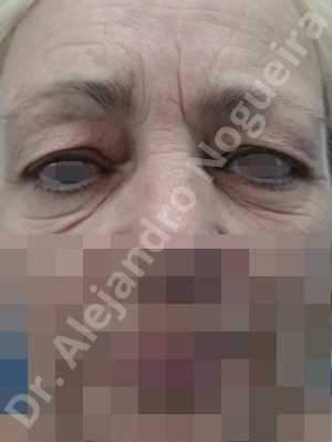 Baggy lower eyelids,Baggy upper eyelids,Saggy lower eyelids,Saggy upper eyelids,Upper eyelids ptosis,Lower eyelid fat bags resection,Lower eyelid skin and muscle resection,Lower eyelid wedge resection,Subciliary approach incision,Upper eyelid fat bags resection,Upper eyelid skin and muscle resection