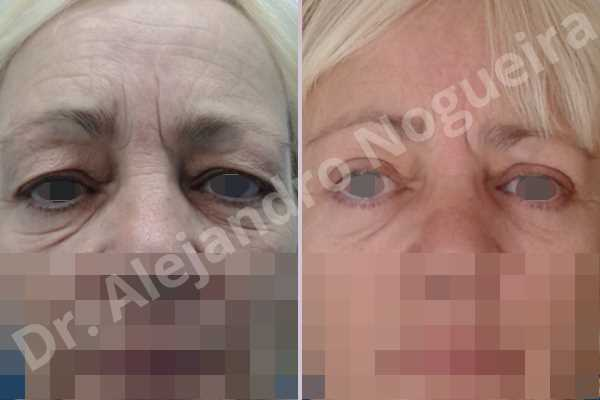 Baggy lower eyelids,Baggy upper eyelids,Saggy lower eyelids,Saggy upper eyelids,Upper eyelids ptosis,Lower eyelid fat bags resection,Lower eyelid skin and muscle resection,Lower eyelid wedge resection,Subciliary approach incision,Upper eyelid fat bags resection,Upper eyelid skin and muscle resection - photo 1