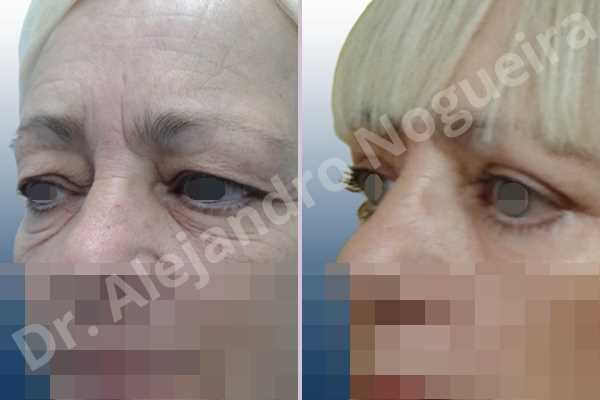 Baggy lower eyelids,Baggy upper eyelids,Saggy lower eyelids,Saggy upper eyelids,Upper eyelids ptosis,Lower eyelid fat bags resection,Lower eyelid skin and muscle resection,Lower eyelid wedge resection,Subciliary approach incision,Upper eyelid fat bags resection,Upper eyelid skin and muscle resection - photo 4