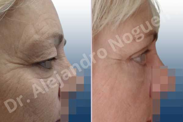 Baggy lower eyelids,Baggy upper eyelids,Saggy lower eyelids,Saggy upper eyelids,Upper eyelids ptosis,Lower eyelid fat bags resection,Lower eyelid skin and muscle resection,Lower eyelid wedge resection,Subciliary approach incision,Upper eyelid fat bags resection,Upper eyelid skin and muscle resection - photo 5