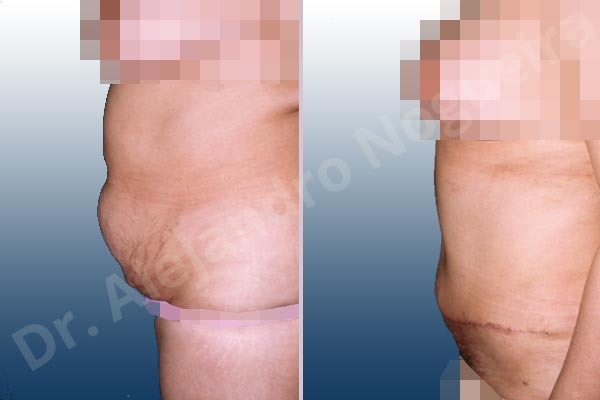 Saggy abdomen,Weak abdomen muscles,Standard abdominoplasty