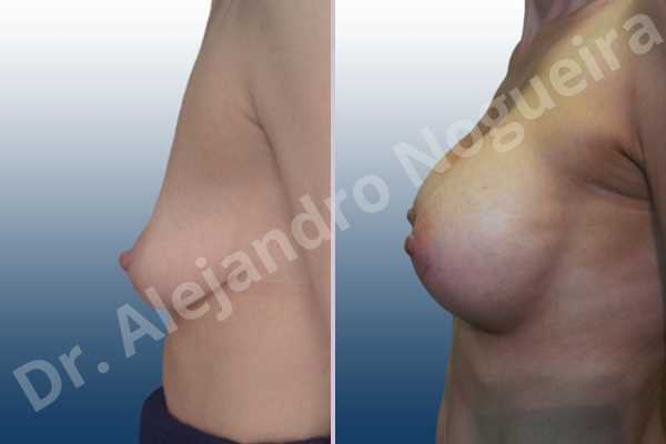 Empty breasts,Moderately saggy droopy breasts,Narrow breasts,Pendulous breasts,Skinny breasts,Small breasts,Extra large size,Lower hemi periareolar incision,Round shape,Subfascial pocket plane - photo 2