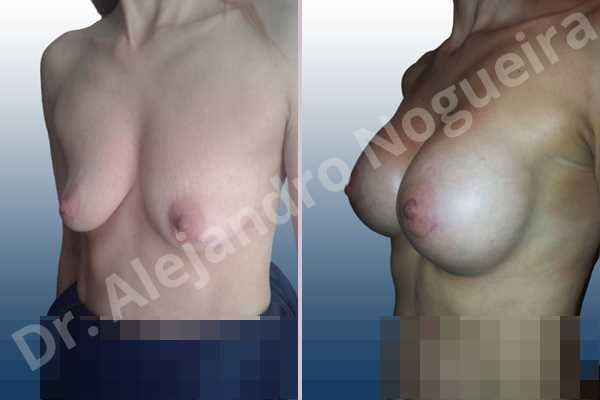 Empty breasts,Moderately saggy droopy breasts,Narrow breasts,Pendulous breasts,Skinny breasts,Small breasts,Extra large size,Lower hemi periareolar incision,Round shape,Subfascial pocket plane - photo 3