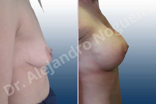 Empty breasts,Moderately saggy droopy breasts,Narrow breasts,Pendulous breasts,Skinny breasts,Small breasts,Extra large size,Lower hemi periareolar incision,Round shape,Subfascial pocket plane - photo 4