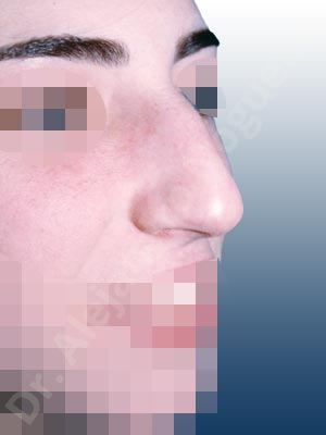 Broad nose,Dorsum hump,Droopy tip,Dynamic alar flaring,Large alar cartilages,Large nose,Long nose,Long upper lateral cartilages,Mediterranean nose,Overprojected tip,Plunging tip deformity,Closed approach incision,Dorsum hump resection,Lateral cruras cephalic resection,Lateral cruras shortening resection,Medial cruras shortening resection,Nasal bones osteotomies,Triangular cartilages caudal resection
