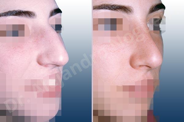Before & After Case QHG9VZ74