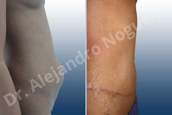 Before & After Case QHVGV6GT