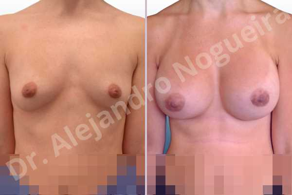 Asymmetric breasts,Cleft nipples,Empty breasts,Inverted nipples,Lateral breasts,Narrow breasts,Skinny breasts,Sunken chest,Too far apart wide cleavage breasts,Anatomical shape,Lower hemi periareolar incision,Subfascial pocket plane - photo 1