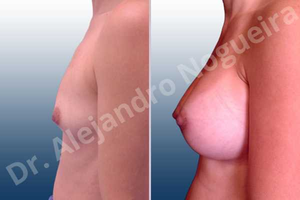Asymmetric breasts,Cleft nipples,Empty breasts,Inverted nipples,Lateral breasts,Narrow breasts,Skinny breasts,Sunken chest,Too far apart wide cleavage breasts,Anatomical shape,Lower hemi periareolar incision,Subfascial pocket plane - photo 2
