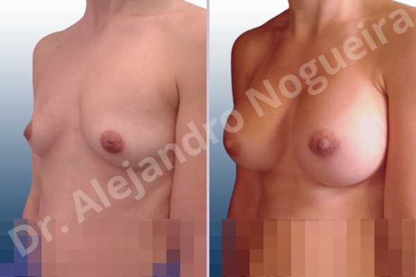 Asymmetric breasts,Cleft nipples,Empty breasts,Inverted nipples,Lateral breasts,Narrow breasts,Skinny breasts,Sunken chest,Too far apart wide cleavage breasts,Anatomical shape,Lower hemi periareolar incision,Subfascial pocket plane - photo 3