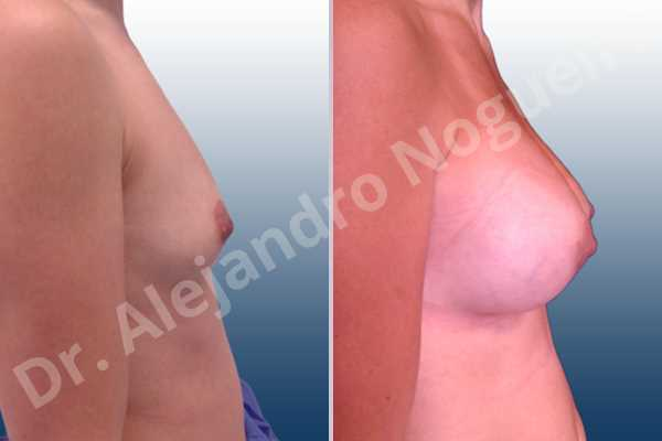 Asymmetric breasts,Cleft nipples,Empty breasts,Inverted nipples,Lateral breasts,Narrow breasts,Skinny breasts,Sunken chest,Too far apart wide cleavage breasts,Anatomical shape,Lower hemi periareolar incision,Subfascial pocket plane - photo 4
