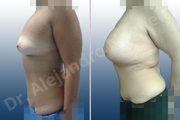 Before & After Case QTZPN8EH
