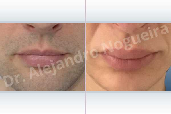 Small lips,Transgender lips,Upper lip autologous dermis collagen filler