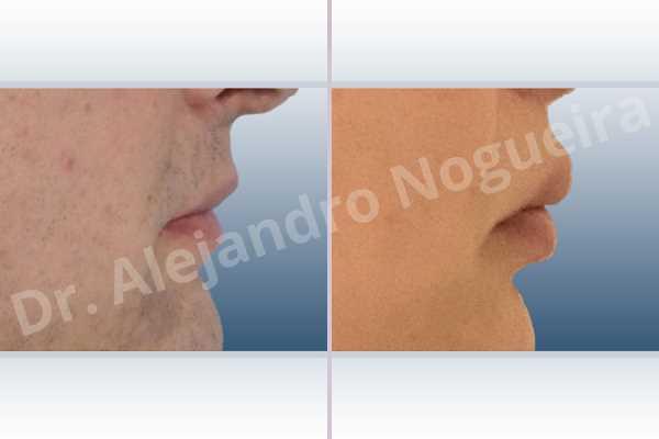 Small lips,Transgender lips,Upper lip autologous dermis collagen filler - photo 5
