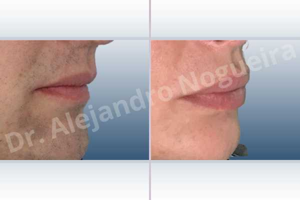 Small lips,Transgender lips,Upper lip autologous dermis collagen filler - photo 6