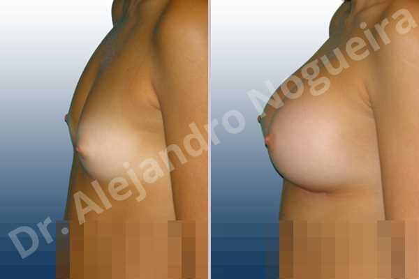 Cross eyed breasts,Narrow breasts,Small breasts,Anatomical shape,Inframammary incision,Subfascial pocket plane - photo 2