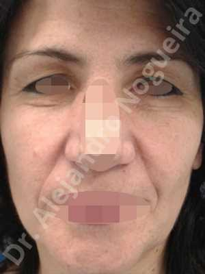 Deep nasolabial folds,Droopy cheeks,Droopy eyebrows,Droopy face,Droopy forehead,Upper eyelids ptosis,Short temporal incisions supraperiosteal extended lift of the upper two thirds of the face