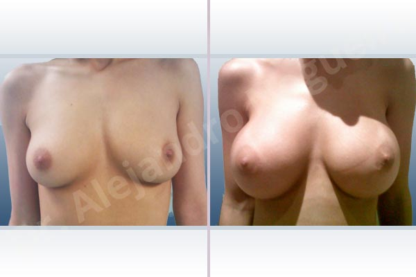 Empty breasts,Lateral breasts,Slightly saggy droopy breasts,Small breasts,Extra large size,Lower hemi periareolar incision,Round shape,Subfascial pocket plane - photo 1