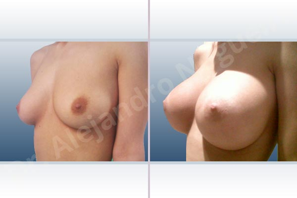 Empty breasts,Lateral breasts,Slightly saggy droopy breasts,Small breasts,Extra large size,Lower hemi periareolar incision,Round shape,Subfascial pocket plane - photo 3