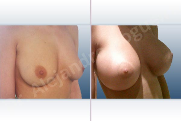 Empty breasts,Lateral breasts,Slightly saggy droopy breasts,Small breasts,Extra large size,Lower hemi periareolar incision,Round shape,Subfascial pocket plane - photo 5