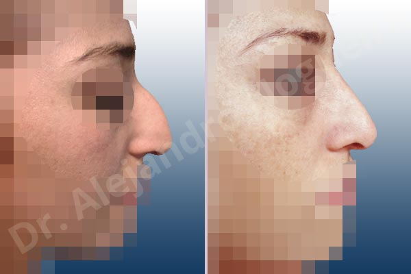 Alar flaring,Arabic nose,Asymmetric nose,Asymmetric tip,Concave lateral cruras,Crooked nose,Crooked tip,Dorsum hump,Droopy tip,Large nose,Long nose,Long septum,Long upper lateral cartilages,Narrow dorsum,Plunging tip deformity,Pointy tip,Poorly supported tip,Tension nose,Thick skin nose,Underprojected tip,Caudal septum resection,Columella strut graft,Custom made tip graft,Dorsum hump resection,Ear cartilage graft harvesting,Extended columella strut graft,Intercrural columella plasty sutures,Interdomal tip plasty sutures,Lateral cruras caudal extension graft,Lateral cruras cephalic resection,Lateral cruras cross location,Lateral cruras repositioning,Lateral cruras reverse plasty,Lateral cruras shortening resection,Lateral cruras strut graft,Medial cruras lengthening graft,Nasal bones osteotomies,Onlay tip graft,Open approach incision,Shield tip graft,Tip replacement graft,Transdomal tip plasty scoring,Transdomal tip plasty sutures,Triangular cartilages caudal resection - photo 4