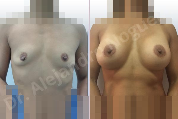 Asymmetric breasts,Empty breasts,Lateral breasts,Skinny breasts,Slightly saggy droopy breasts,Small breasts,Too far apart wide cleavage breasts,Wide breasts,Anatomical shape,Lower hemi periareolar incision,Subfascial pocket plane - photo 1