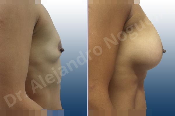 Asymmetric breasts,Empty breasts,Lateral breasts,Skinny breasts,Slightly saggy droopy breasts,Small breasts,Too far apart wide cleavage breasts,Wide breasts,Anatomical shape,Lower hemi periareolar incision,Subfascial pocket plane - photo 4