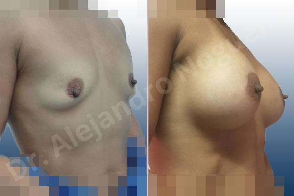 Asymmetric breasts,Empty breasts,Lateral breasts,Skinny breasts,Slightly saggy droopy breasts,Small breasts,Too far apart wide cleavage breasts,Wide breasts,Anatomical shape,Lower hemi periareolar incision,Subfascial pocket plane - photo 5