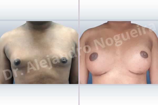 Cross eyed breasts,Empty breasts,Hypertrophic scars,Keloid scars,Lateral breasts,Pigeon chest,Pigmented scars,Small breasts,Too far apart wide cleavage breasts,Wide breasts,Transgender breasts,Inframammary incision,Round shape,Subfascial pocket plane - photo 1