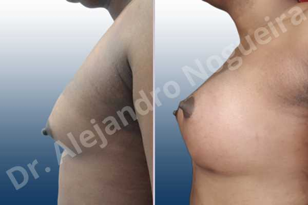 Cross eyed breasts,Empty breasts,Hypertrophic scars,Keloid scars,Lateral breasts,Pigeon chest,Pigmented scars,Small breasts,Too far apart wide cleavage breasts,Wide breasts,Transgender breasts,Inframammary incision,Round shape,Subfascial pocket plane - photo 2