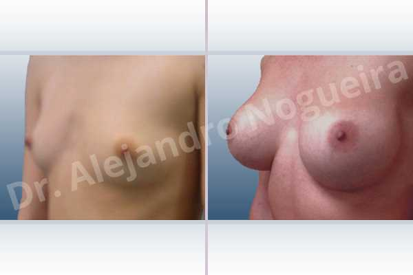 Asymmetric breasts,Lateral breasts,Narrow breasts,Skinny breasts,Small breasts,Sunken chest,Too far apart wide cleavage breasts,Anatomical shape,Lower hemi periareolar incision,Subfascial pocket plane - photo 3