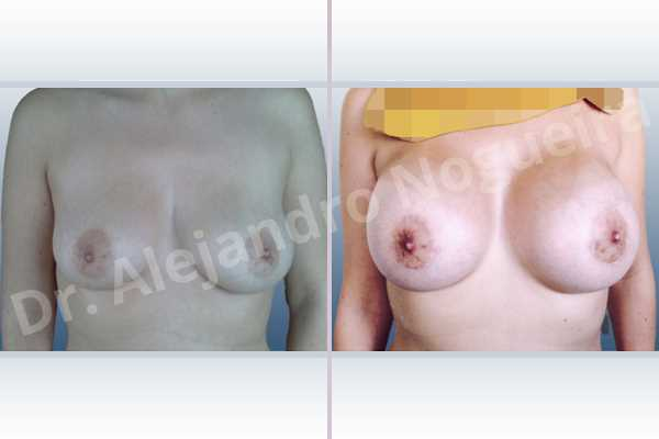 Cross eyed breasts,Empty breasts,Mildly saggy droopy breasts,Slightly large breasts,Extra large size,Lower hemi periareolar incision,Round shape,Subfascial pocket plane - photo 1